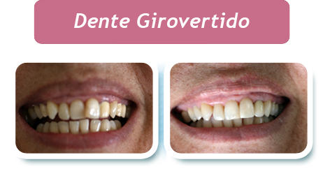 Dente Girovertido