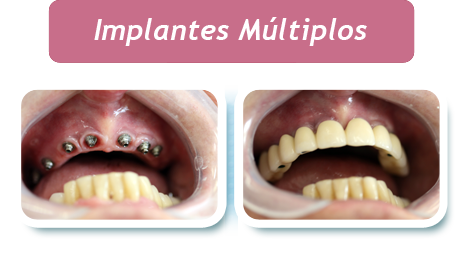 Implantes Multiplos